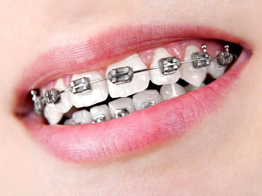 brackets dentales