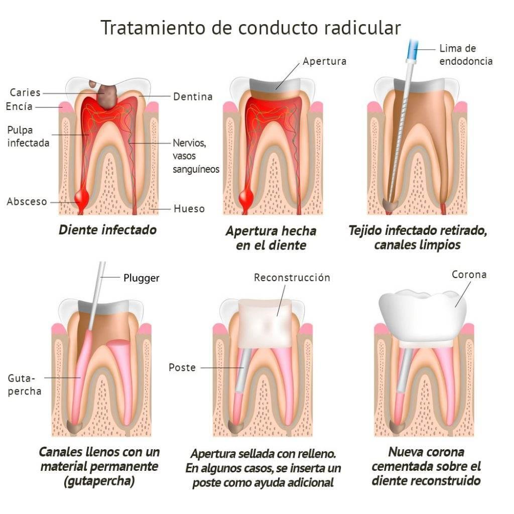 en-que-consiste-la-endodoncia