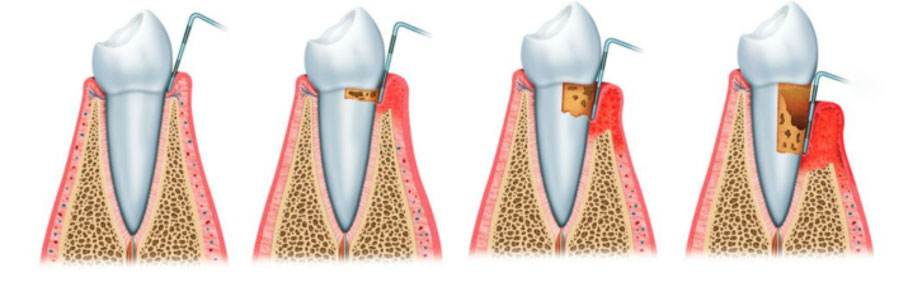 periodoncial