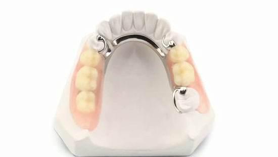 removible-sobre-dientes