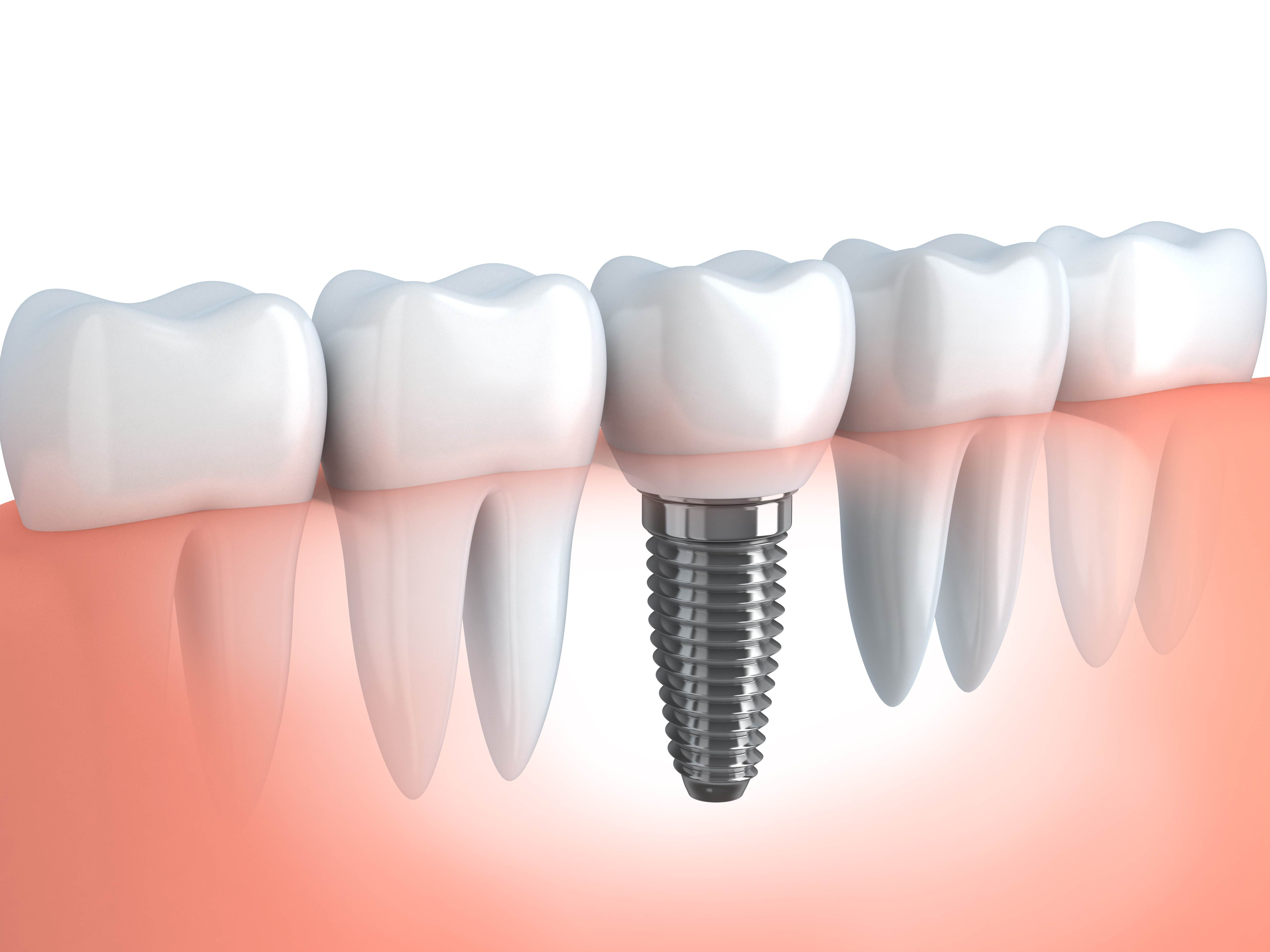 Implantes dentales Torrelodones