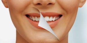 Estética dental Torrelodones