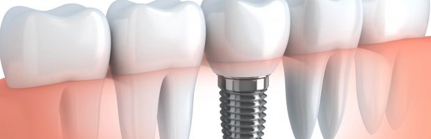 Implantes dentales Torrelodones