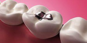Odontología natural