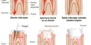 Endodoncias Torrelodones