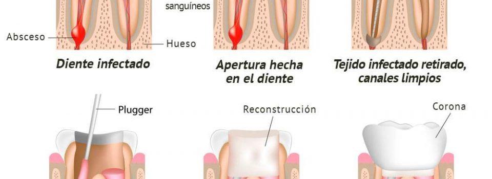 Endodoncia Que Es Como Se Hace Y Precios