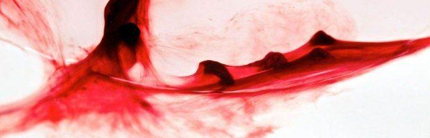 Sangrado dental